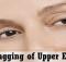 reduce sagging eyelids