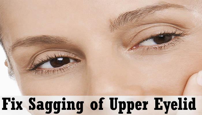 Fix Sagging of Upper Eyelids