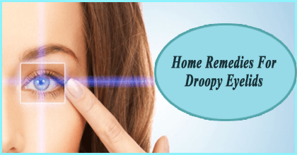 droopy eyelids-home remedies
