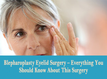 Blepharoplasty Eyelid Surgery – Everything You Should Know About This Surgery