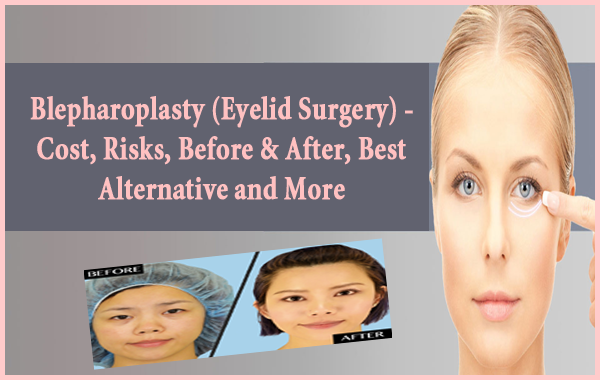 Saggy Eyelids Surgery Cost – Anexa Beauty