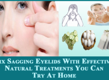 Fix Sagging Eyelids With Effective Natural Treatments
