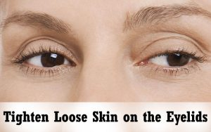 Tighten-Loose-Skin-on-the-Eyelids