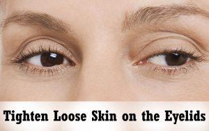 Tighten-Loose-Skin-on-the-Eyelids