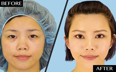 blepharoplasty before-after