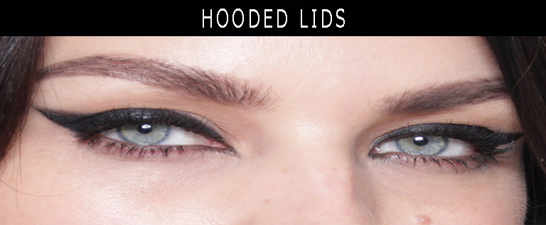hooded lids