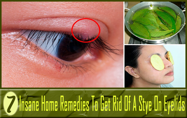 7 Insane Home Remedies To Get Rid Of A Stye On Eyelids