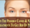 caues and treatments to get rid of ptosis
