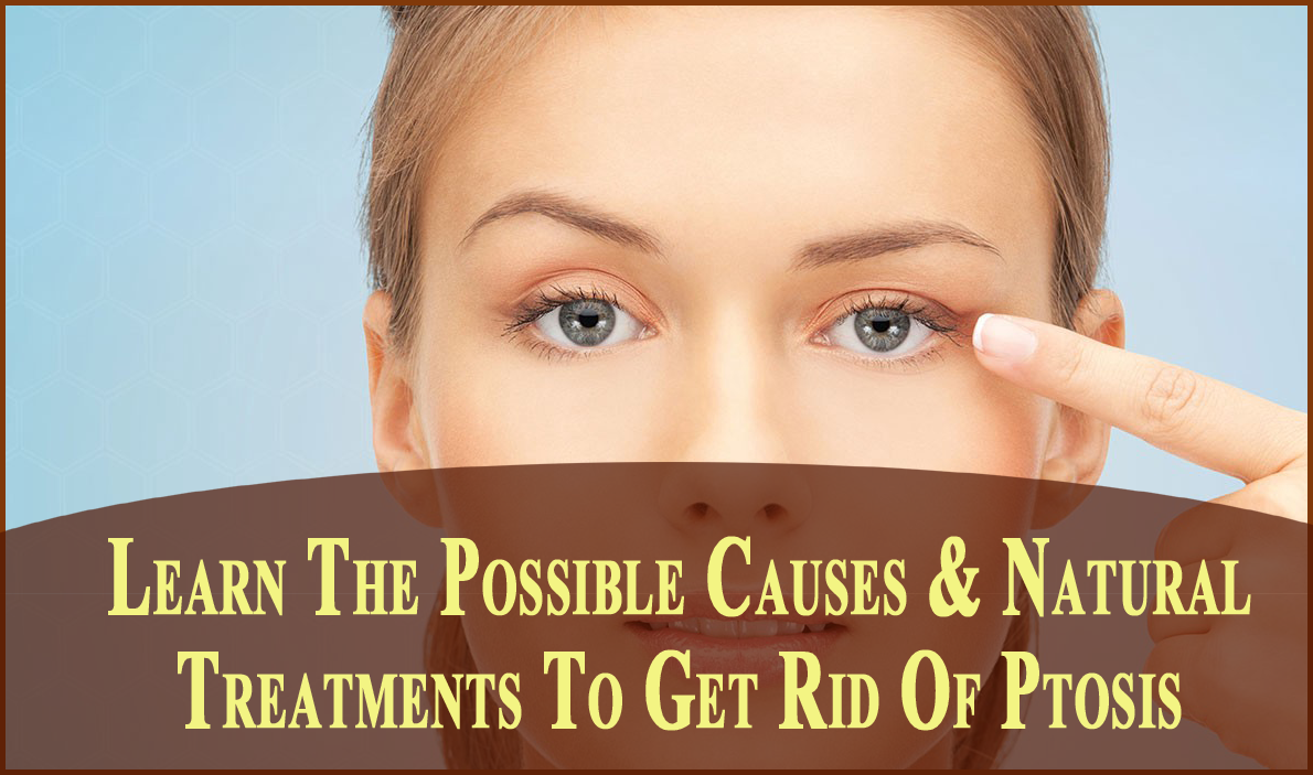 Learn The Possible Causes & Natural Treatments To Get Rid Of Ptosis