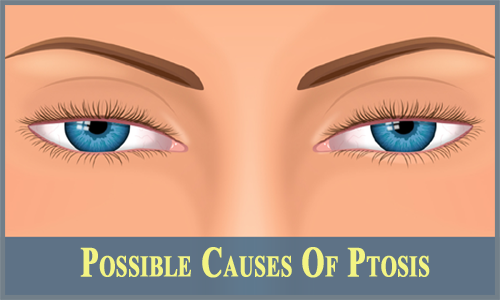 causes of ptosis