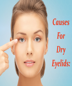 Dry Eyelids – Its Causes and Treatment You Can't Avoid