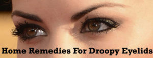 home-remedies-for-droopy-eyelids