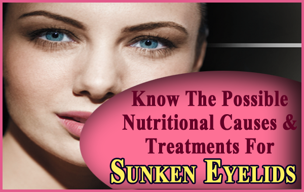 Know The Possible Nutritional Causes & Home Remedies For Sunken Eyelids