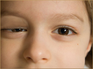 Congenital Droopy Eyes