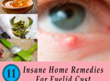 home-remedies-for-eyelid-cyst