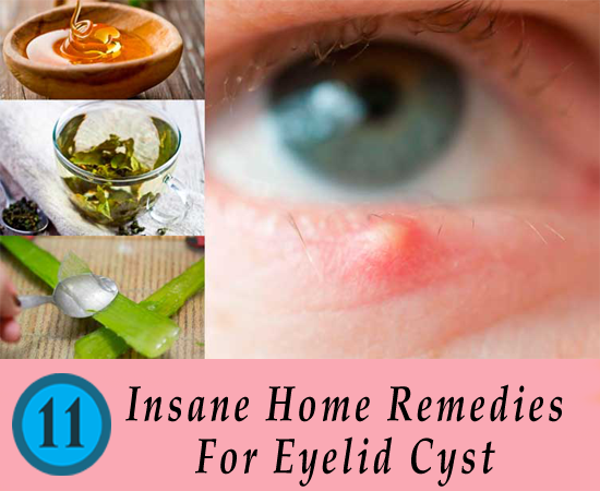 Natural Remedies For Chalazion