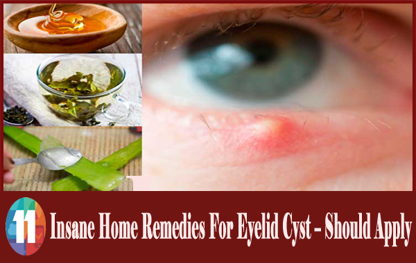 home-remedies-for-eyelid-cysts