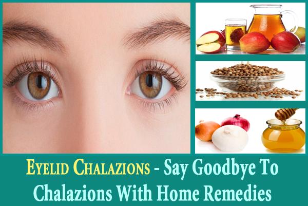 Eyelid Chalazions