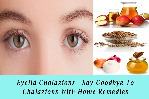Eyelid Chalazions - Say Goodbye To Chalazions With Home Remedies