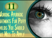 ayurvedic treatment for puffy eyes