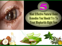 natural home remedies for blepharitis