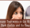 5-Insane-Treatments-to-Get-Rid-Of-Dark-Eyelids-and-Its-Causes copy