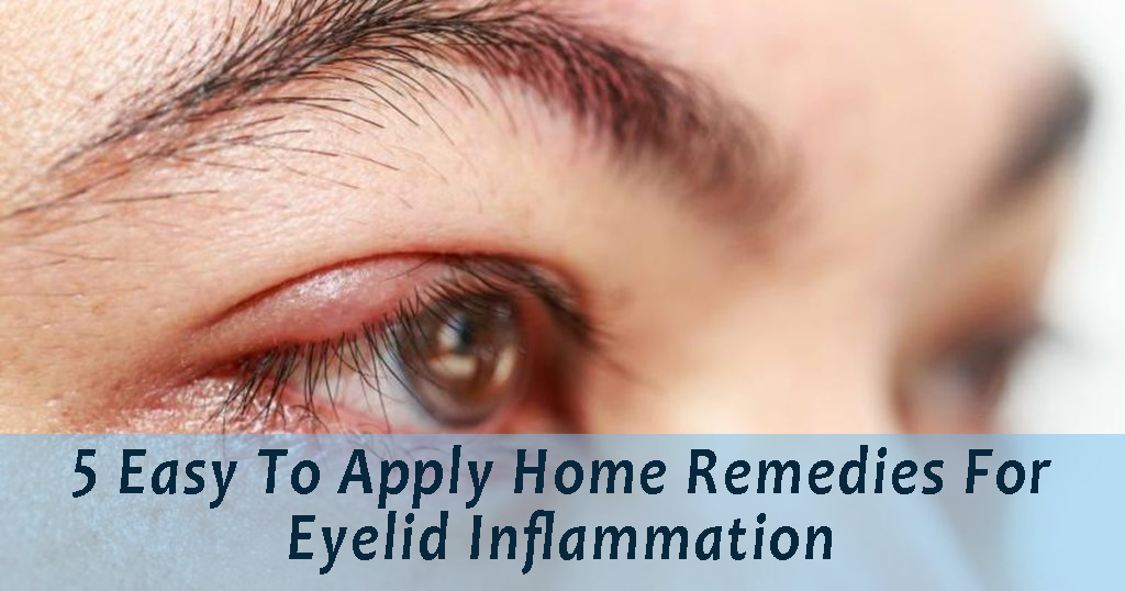 Eyelid Inflammation