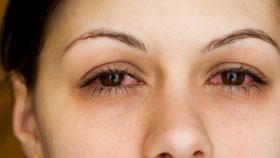 eye-allergies