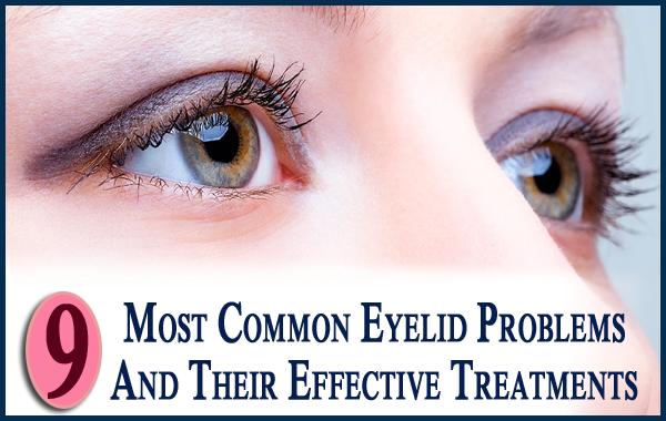 Common Eyelid Problems