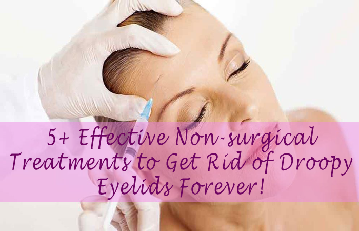 Get Rid of Droopy Eyelids Forever