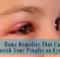 Pimples on Eyelids