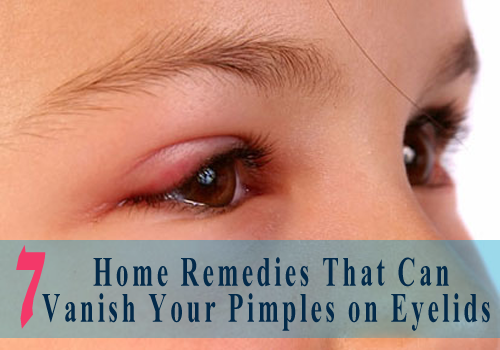 Pimples on Eyelids