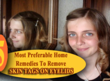 Remove Skin Tags On Eyelids