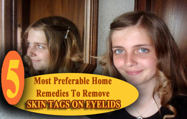 5 Most Preferable Home Remedies To Remove Skin Tags On Eyelids