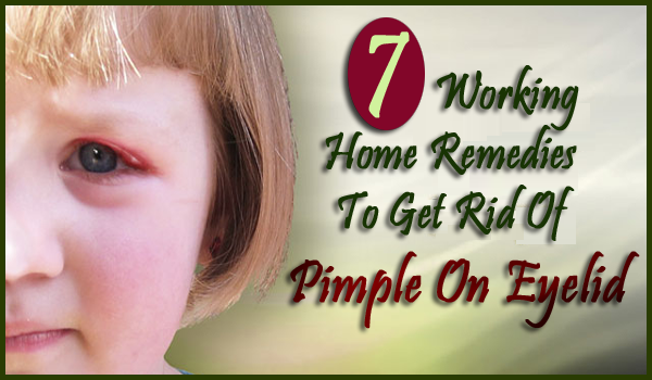 home remedies for pimple on eyelid