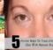 Crepey Eyelid Skin