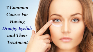 causes-of-droopy-eyelids