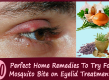 home-remedies-Mosquito-Bites-on-Eyelids copy