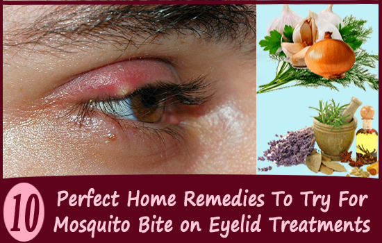 Top 10 Effective Home Remedies To Treat Mosquito Bite On Eyelid