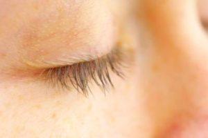 Eyelid Peeling