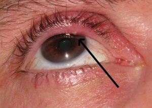 Know The Possible Causes & Treatments Of Having Bump On Eyelid