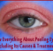 Know Everything About Peeling Eyelids Including Its Causes & Treatments