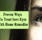 Treat Sore Eyes With Home Remedies
