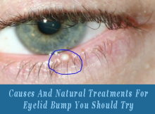 causes and treatment for Eyelid Bump