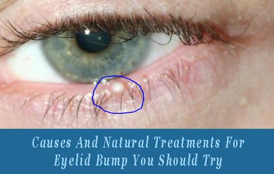 Stye Treatments Natural
