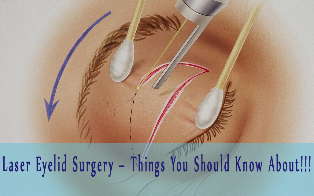 Laser Eyelid Surgery Things You Should Know About