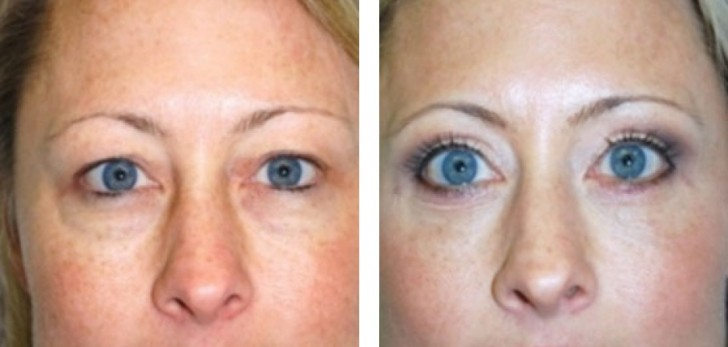 Laser Blepharoplasty Eyelid Surgery Things You Should