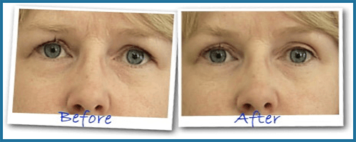 Eye Secrets I Minute Lift before-after