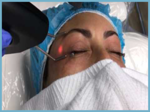 Fractional Laser Eye Lifts