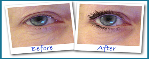 eye secrets eyelid lift-before-after